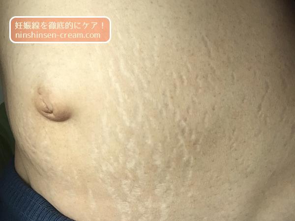 産後の妊娠線の写真・画像