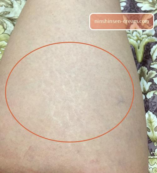 太ももの妊娠線の画像・写真